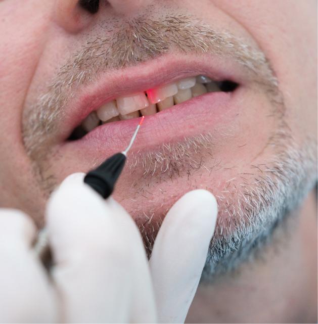 Laser   Studio Dentistico Banzi a Pieve di Cento (BO)