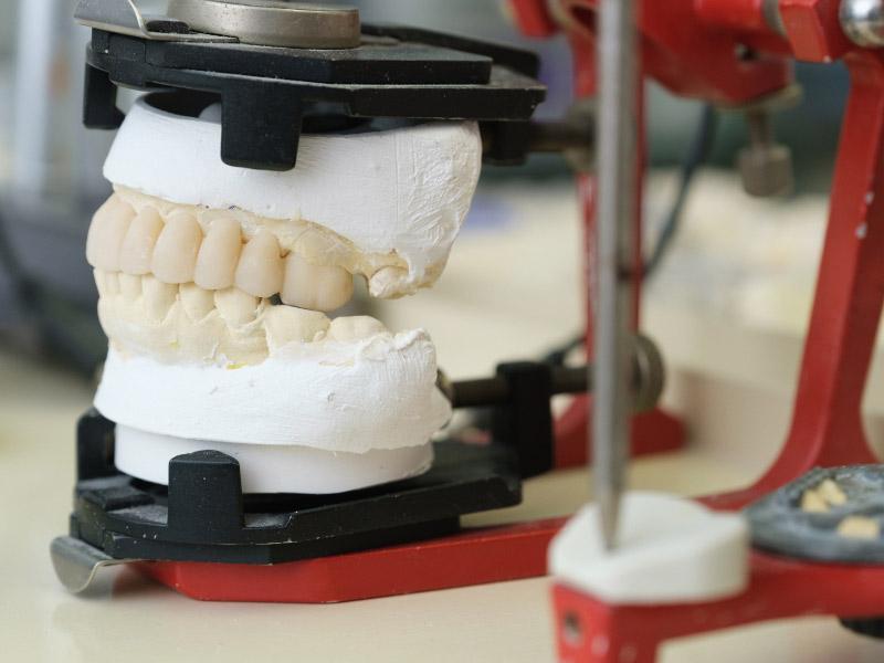 Studio-Dentistico-Banzi_Tecnologie_Dentista-a-Pieve-di-Cento
