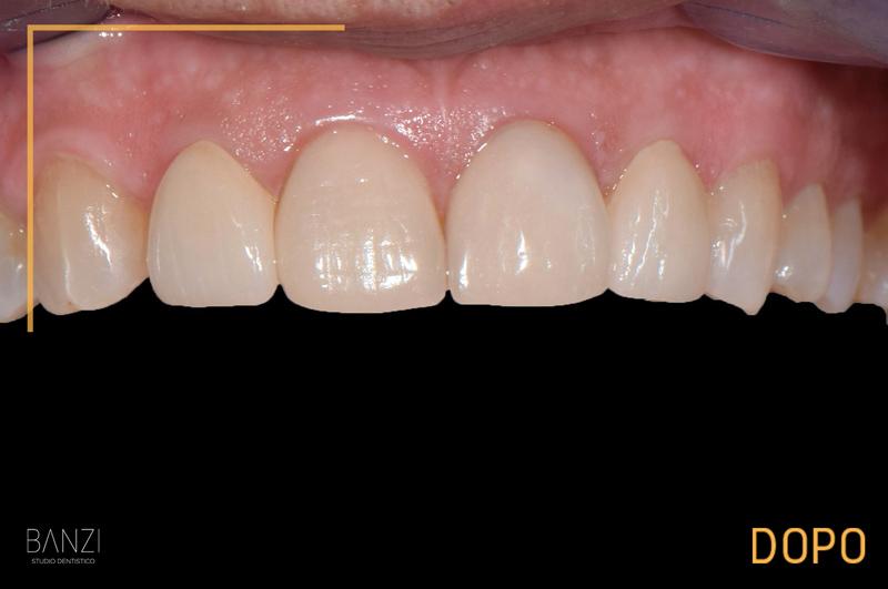Caso clinico 1 dopo Studio dentistico Banzi   Studio Dentistico a Pieve di Cento   Studio Dentistico Banzi
