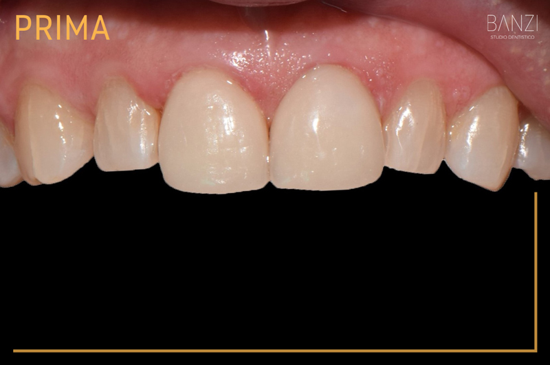 Caso clinico 1 prima Studio dentistico Banzi   Studio Dentistico a Pieve di Cento   Studio Dentistico Banzi