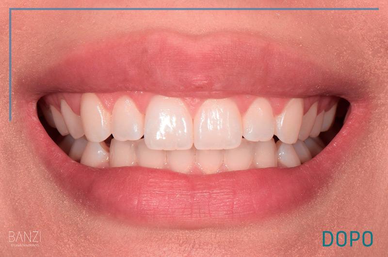 Caso clinico 2 dopo Studio dentistico Banzi   Studio Dentistico a Pieve di Cento   Studio Dentistico Banzi