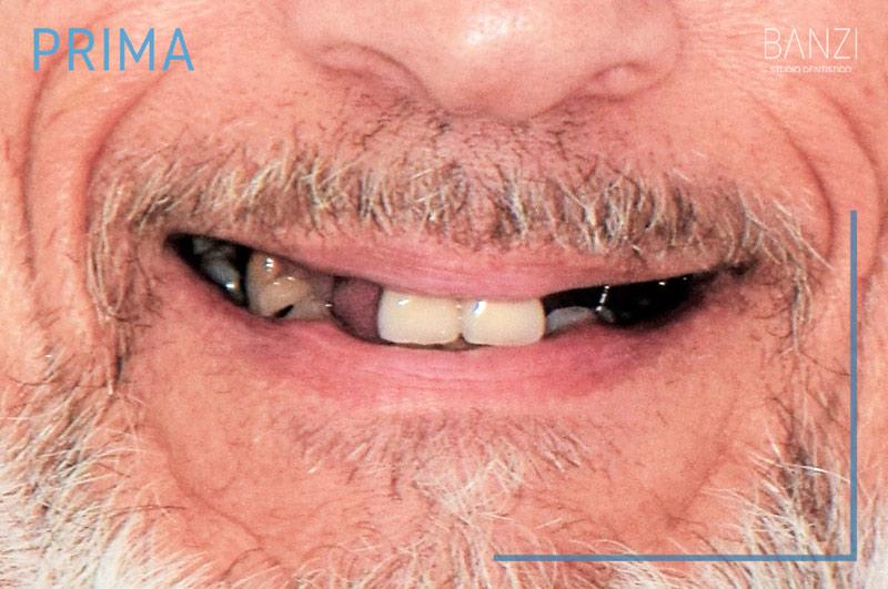 Caso clinico 3 prima Studio dentistico Banzi   Studio Dentistico a Pieve di Cento   Studio Dentistico Banzi
