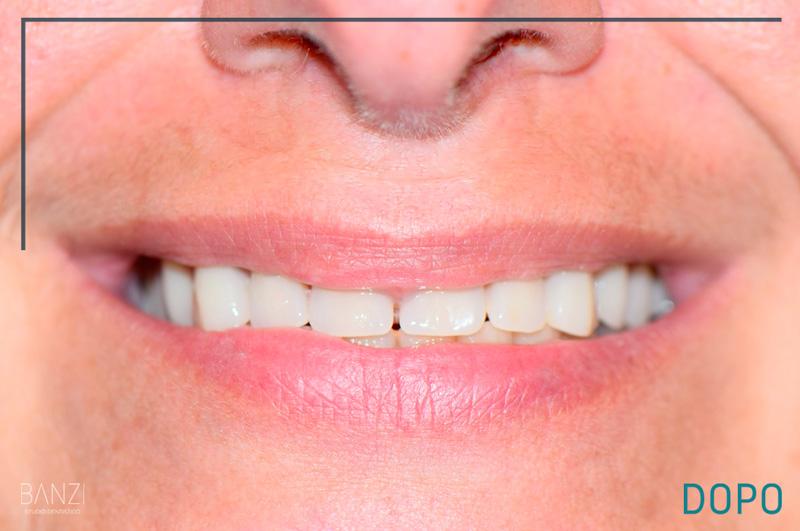 Caso clinico 4 dopo Studio dentistico Banzi   Studio Dentistico a Pieve di Cento   Studio Dentistico Banzi
