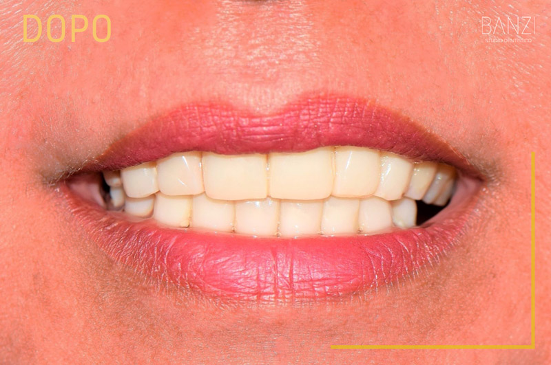 Caso clinico 5 dopo Studio dentistico Banzi   Studio Dentistico a Pieve di Cento   Studio Dentistico Banzi