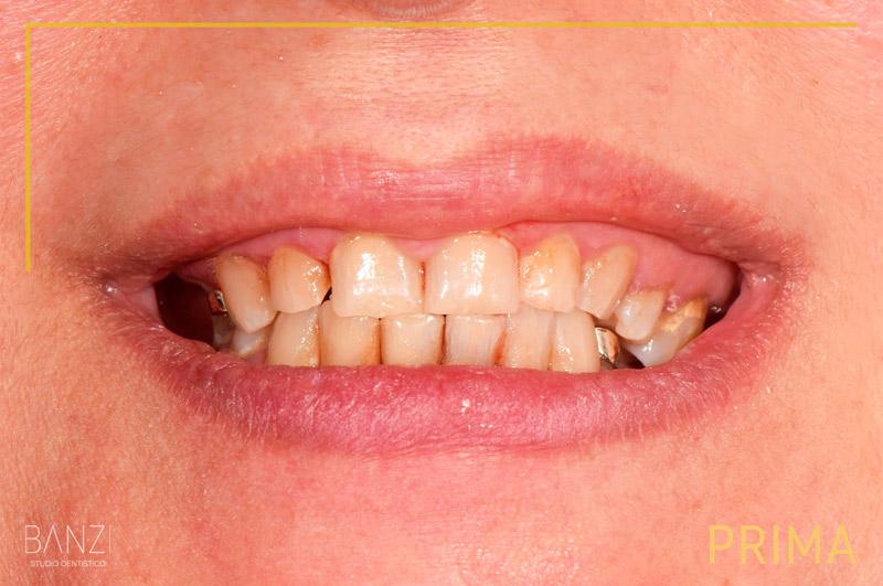 Caso clinico 5 prima Studio dentistico Banzi   Studio Dentistico a Pieve di Cento   Studio Dentistico Banzi