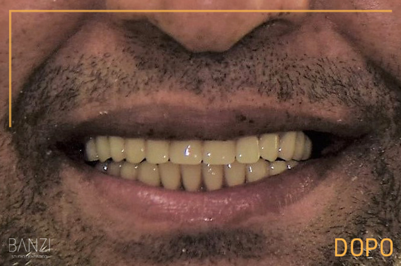 Caso clinico 6 dopo Studio dentistico Banzi   Studio Dentistico a Pieve di Cento   Studio Dentistico Banzi