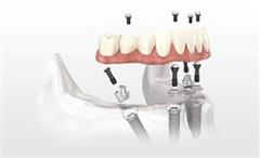 th implantologia carico all4 01 | Studio Dentistico a Pieve di Cento | Studio Dentistico Banzi